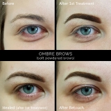 Ombre_Before_Treatment_Healed_Retouch
