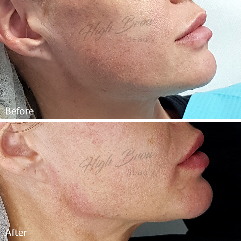 Jaw Line, Chin and Lip Filler
