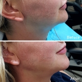 Jaw Line and Chin Filler