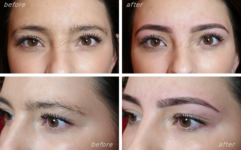 Example: HD Brows before and after treatment